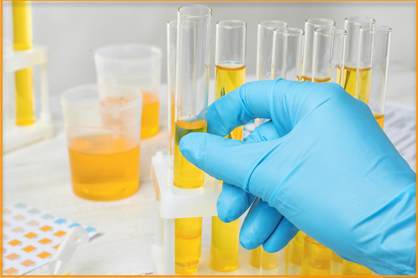 How Urine Color helps to Check your Health